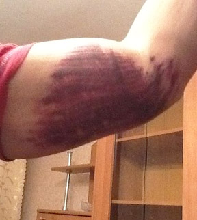 zerwanie tricepsa